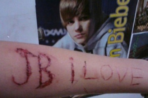 justin bieber cut into arm